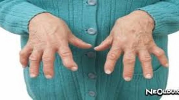 12 Ekim 2018 Dünya Artrit Günü